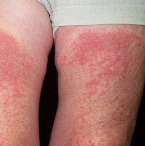 Аллергия на море и солнце: провоцирующие факторы, симптоматика, лечение