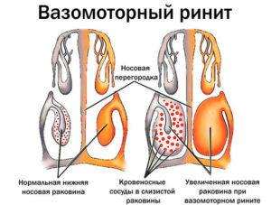Ринит вазомоторный