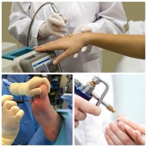 Симптомы и лечение папиллом в заднем проходе