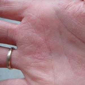 Причины появления, виды и методы лечения псориаза на ладонях