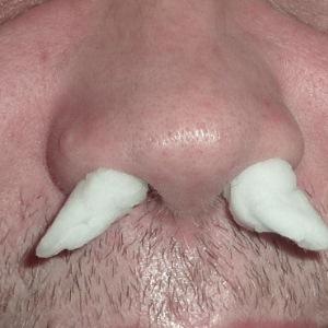 Что делать при ожоге слизистой носа — первая помощь и лечение