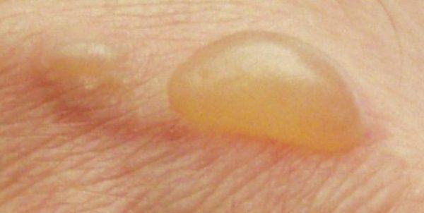 Почему на коже появляются водянистые пузырьки и как от них избавиться