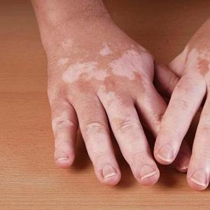Причины и лечение белых пятен на руках