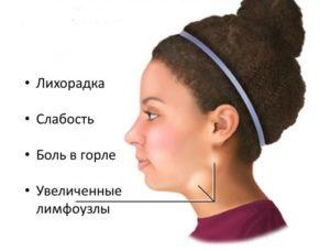Симптоматика тонзиллита