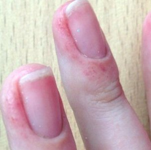 Способы лечения ожога ногтевой пластины