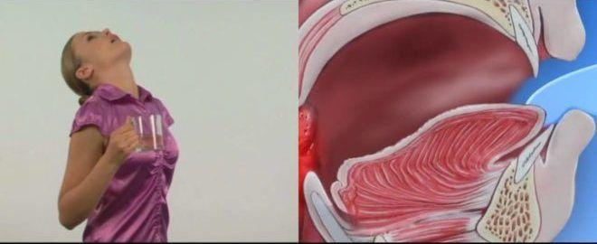 Полоскание горла эффективный метод лечения ангины