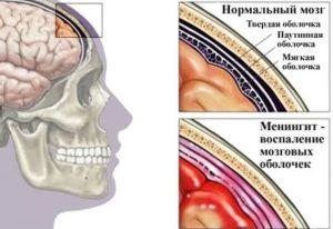 Менингит головного мозга-одно из ряда болезней к которому может привести несвоевременное лечение пазух носа