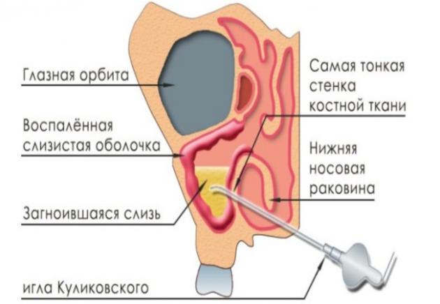 Пункция при гайморите позволяет легко выявить данное заболевание