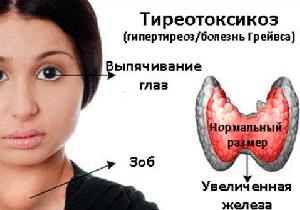 тиреотоксикоз щитовидной железы что это такое