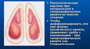 Гиперпластический ринит