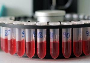 Гормон кальцитонин: норма таблица, отклонения у женщин повышен, понижен, анализы, за что отвечает