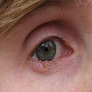 Причины появления и методы лечения бородавок на веке глаза
