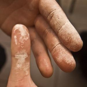 Как использовать перекись водорода от морщин