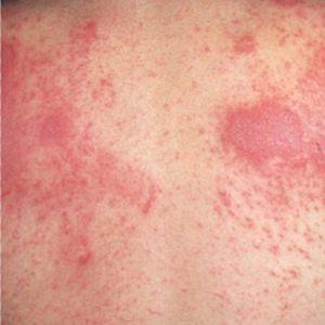Аллергическая сыпь на коже: принципы лечения у разных категорий пациентов