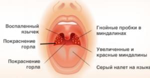 При часто возникающей ангине назначают удаление гланд