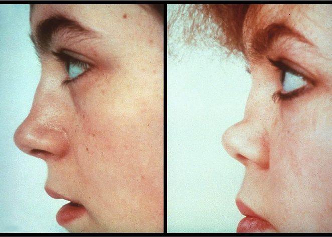 Лорнетный тип носа