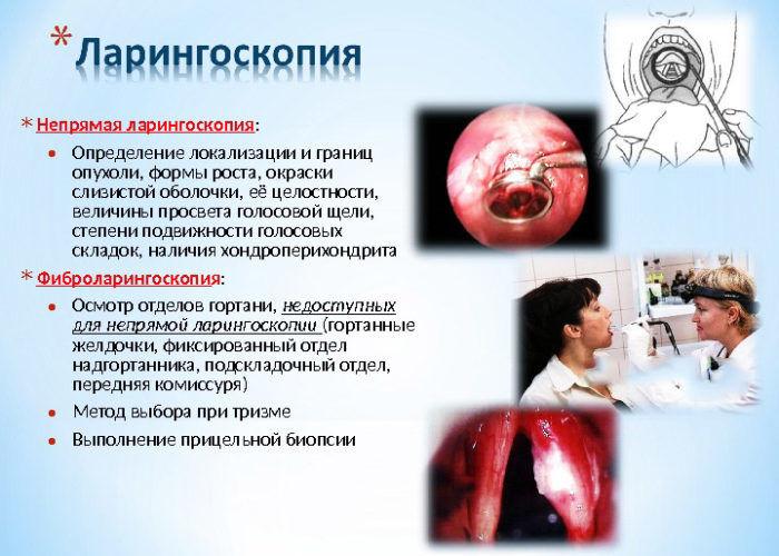 Ларингоскопия горла