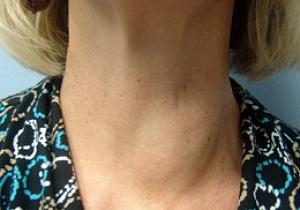 щитовидная железа изоэхогенный узел
