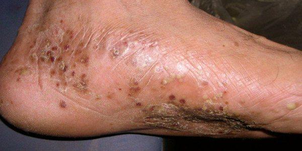 Причины и симптомы себорейного дерматита на теле