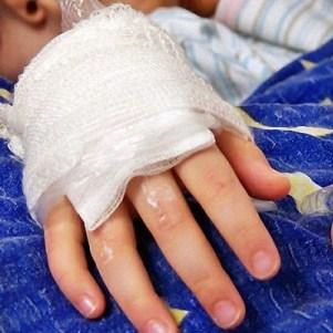 Ожоги на руках: виды и способы лечения