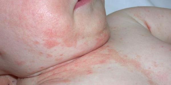 Почему возникает и как лечить аллергический дерматит у детей