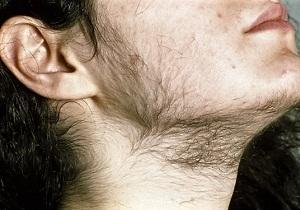 аденома надпочечника у женщин симптомы