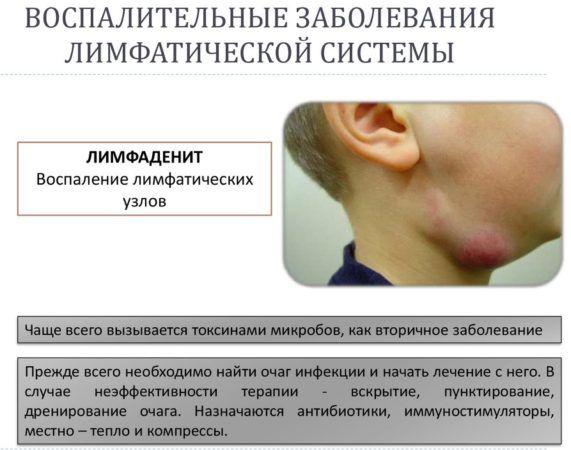 Воспаления лимфоузлов