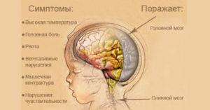 Симптомы и поражения при менингите