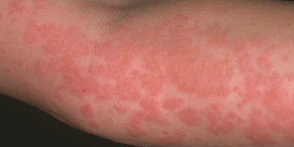 Как выглядит медикаментозная аллергия: симптомы и фото