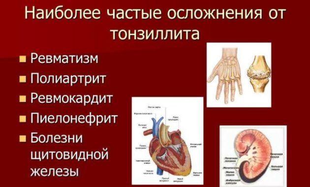 Осложнения тонзиллита