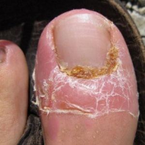 Средство от грибка ногтей: Нитрофунгин