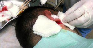 Операция при лабиринтите
