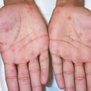 Причины появления и методы лечения пятен белого цвета на коже
