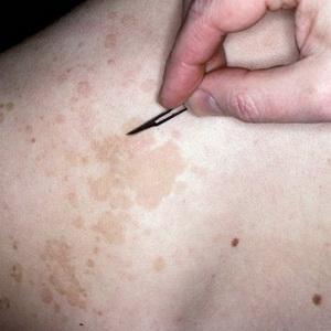 Пути передачи цветного лишая — механизм активизации патогенной флоры на теле