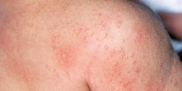 Симптомы и особенности лечения дерматита на нервной почве