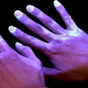 Причины появления и способы устранения пятен на коже