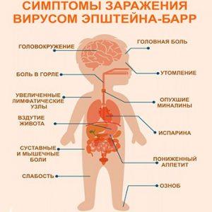 Симптомы, которые сигнализируют о заражении вирусом Эпштейна-Барр