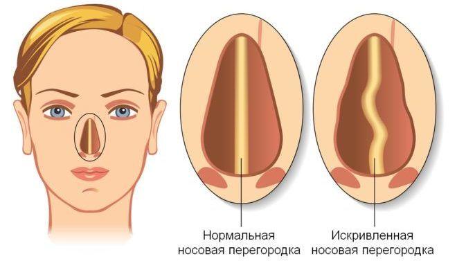 Искривление носовой перегородки ведет за собой потерю обоняния