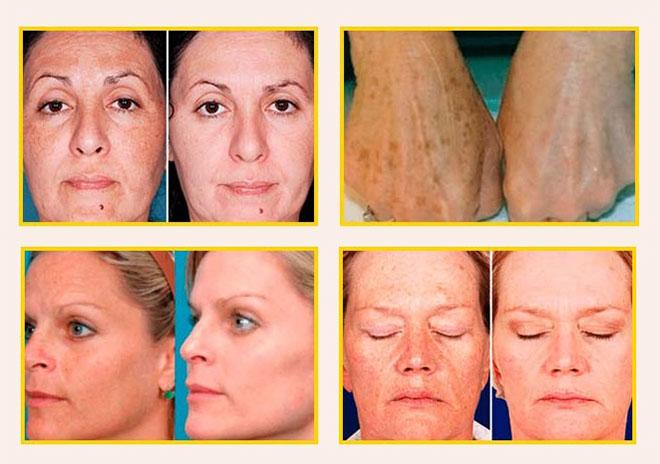Milk Skin — эффективный крем против веснушек и пигментных пятен