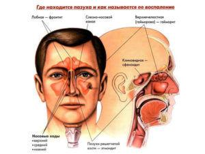 Характеристика катарального гайморита