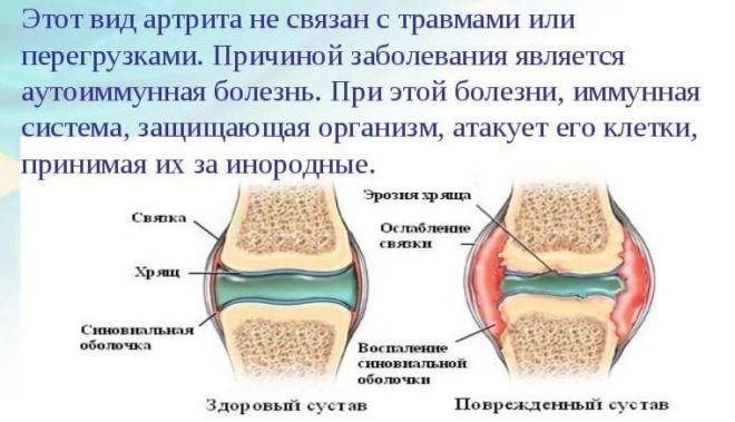 Скарлатинный артрит