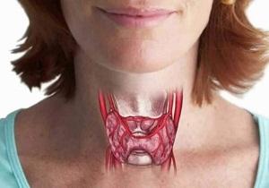 рак щитовидной железы сколько живут после операции