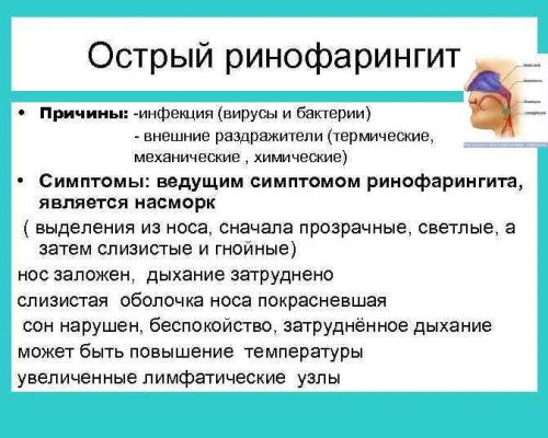 Ринофарингит
