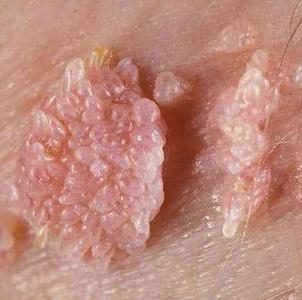 Что такое ВПЧ 6 типа и насколько он опасен
