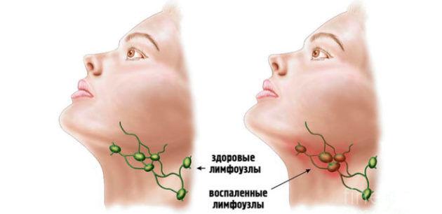 Зеленый раствор для полоскания горла название