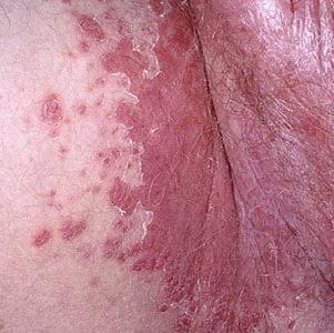 Термикон — противогрибковый препарат широкого действия