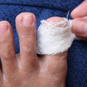 Как лечить грибок ногтей нашатырным спиртом