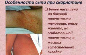 Особенности сыпи при скарлатине
