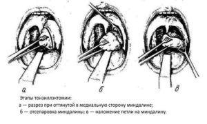 Процесс удаления миндалин