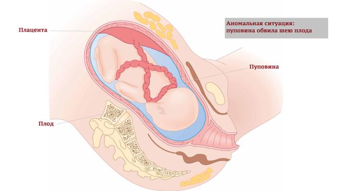 Из-за нехватки кислорода может произойти обвитие пуповиной плода